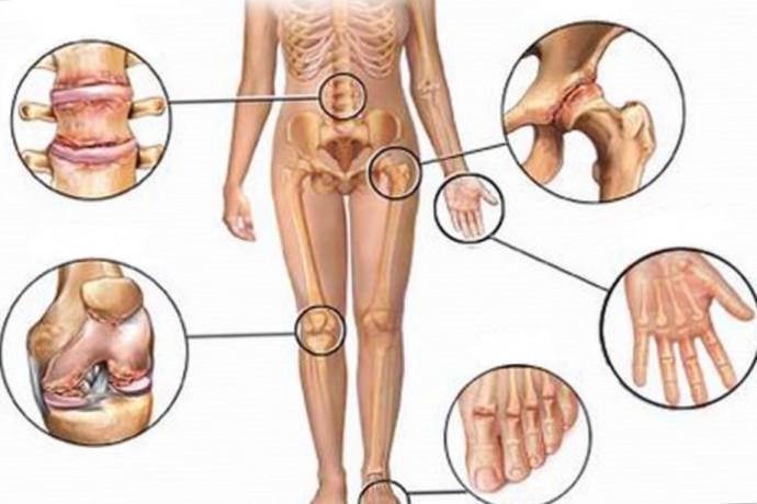 artrose kne
